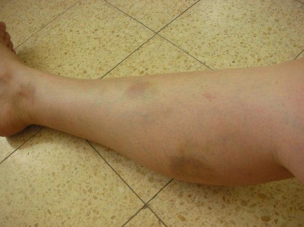 חבורות ברגל- תוצאה של חסימה ותוצאה של חוסר ריכוז שלי